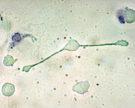 マクロファージの細胞画像。