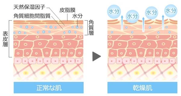 正常な肌と乾燥肌の肌断面図を表しています