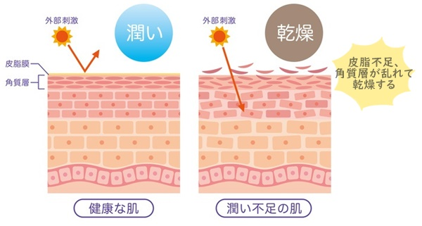 正常な肌と乾燥肌の断面図