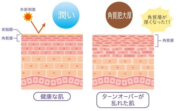 正常な肌と角質肥厚で厚くなった肌の違い
