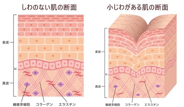 小じわがない肌とある肌の断面図